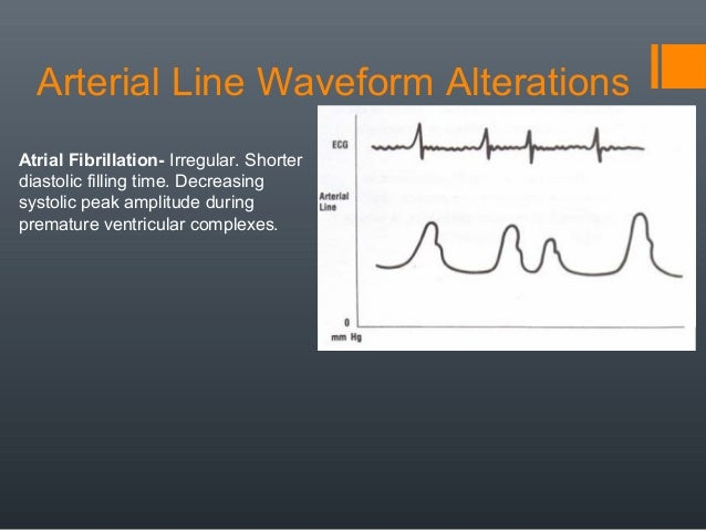 A Line Arterial Monitoring : Non invasive and blood pressure monitoring rrt