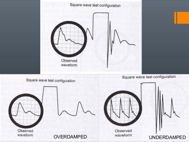 non invasive blood pressure pdf
