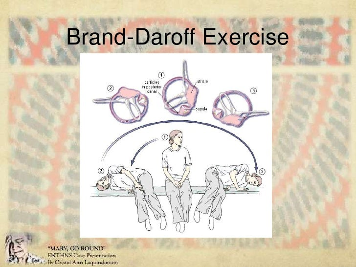 Brandt daroff exercises for bppv