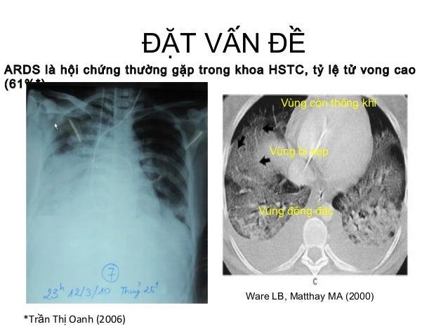 ĐẶT VẤN ĐỀ ARDS là hội chứng thường gặp trong khoa HSTC, tỷ lệ tử vong cao (61%*) Ware LB, Matthay MA (2000) *Tr n Th Oanh...