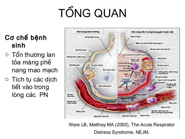 TỔNG QUAN Cơ chế bệnh sinh o Tổn thương lan tỏa màng phế nang mao mạch o Tích tụ các dịch tiết vào trong lòng các PN Ware ...