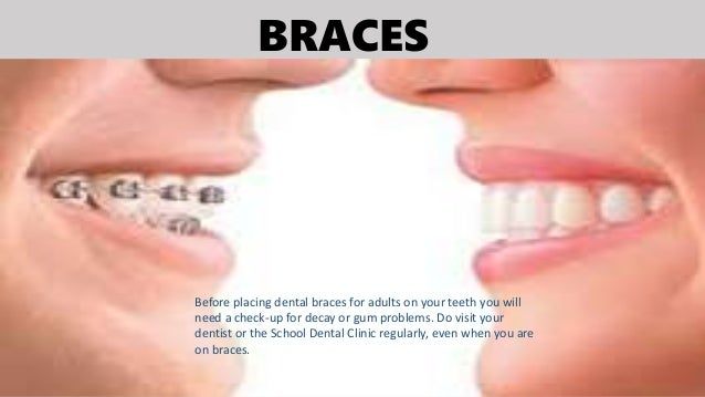 BRACES Before placing dental braces for adults on your teeth you will need a check-up for decay or gum problems. Do visit ...