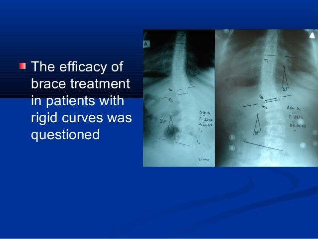 Effectiveness of brace treatment for adolescent idiopathic scoliosis