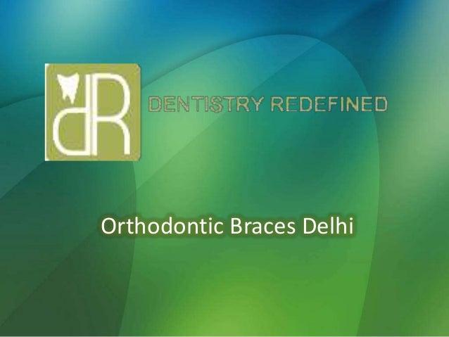 Orthodontic Braces Delhi