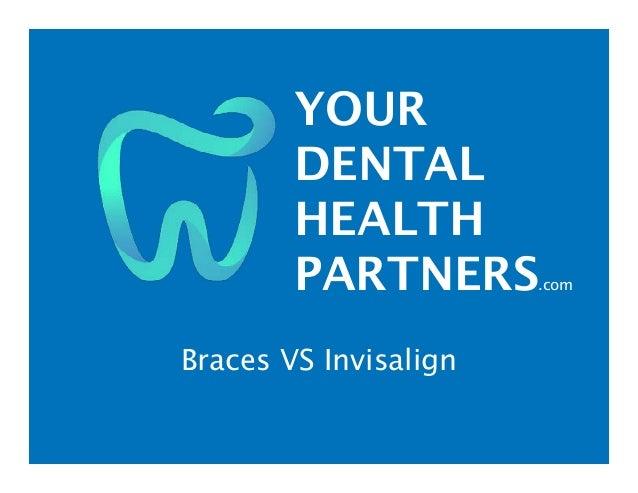 YOUR DENTAL HEALTH PARTNERS.com Braces VS Invisalign