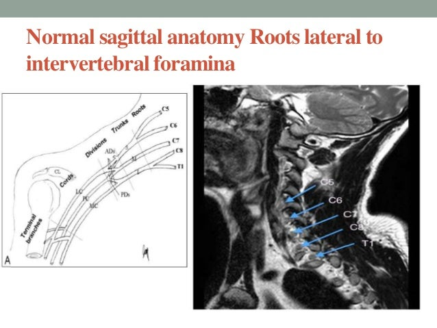 Brachial plexus mri anatomy