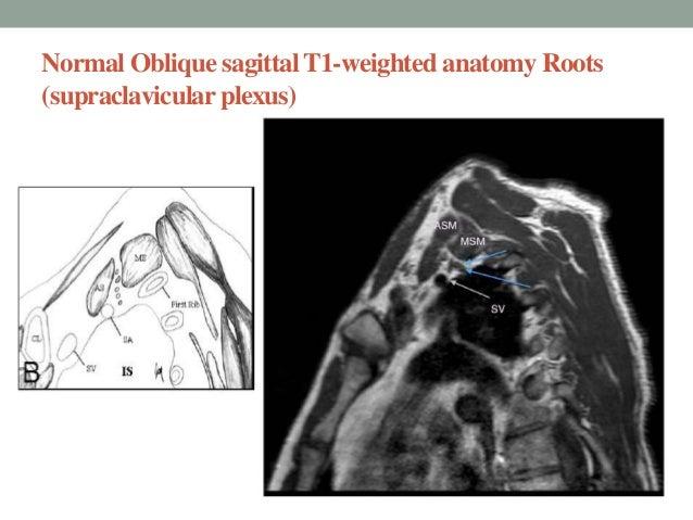 Brachial plexus imaging