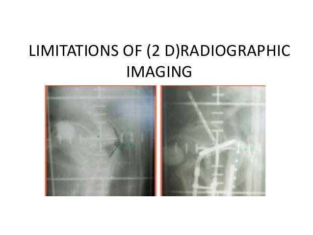 Image guided brachytherapy carcinoma cervix