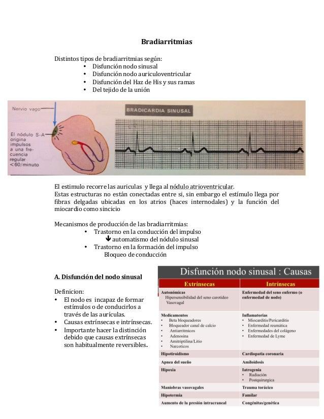 Bradiarritmias  Distintos tipos de bradiarritmias según: • Disfunción nodo sinusal • Disfunción nodo...
