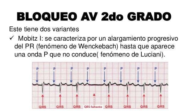 BLOQUEO AV 3er GRADO Las aurículas y los ventrículos laten de manera independiente, cada uno por su lado. Las ondas P no g...