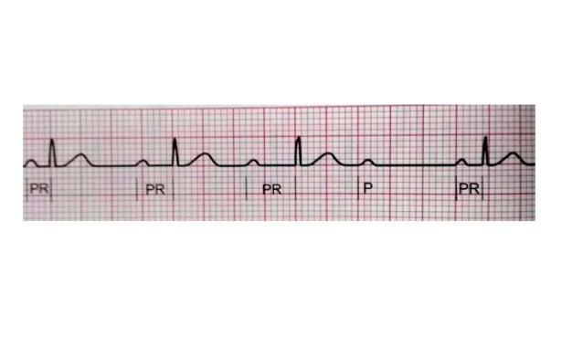 CRITERIOS DE BLOQUEO COMPLETO DE RAMA • Alteración del complejo QRS, lo que da forma de rSR´ • QRS > 0,12 s • Depresión de...