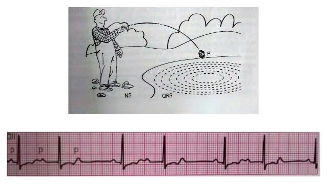 BLOQUEO DE RAMA DERECHA Puede ser normal o patológica. Se aprecia en patologías como • Enf Chagas - HVD cardiopatias congé...