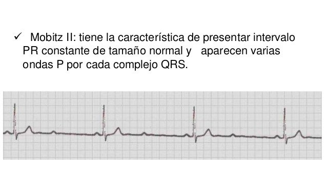 QRS ancho, con un patrón en V1 En V6 QRS ancho, con una pequeña onda q, en patrón qRS.