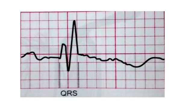 CAUSAS DE BLOQUEO DE RAMA IZQUIERDA • Infarto agudo de miocardio anteroseptal. • Insuficiencia cardíaca congestiva aguda. ...