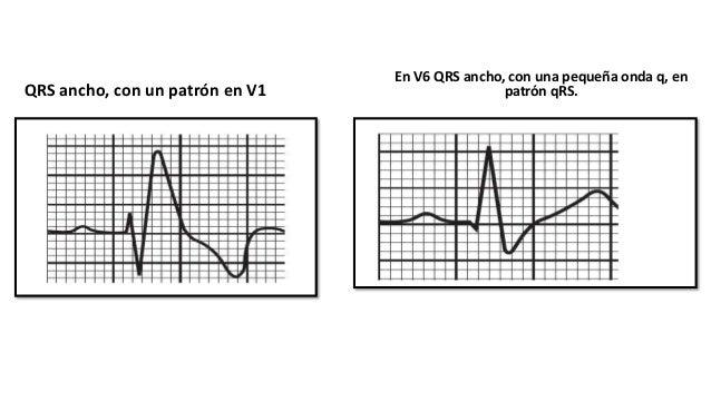 INDICACIONES • Soporte del gasto cardíaco tras la cirugía cardíaca y tratamiento eficaz de los trastornos de la conducción...