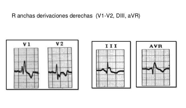 MARCAPASO TRANSCUTANEO • Tendremos monitorizado al paciente, obtenemos una tira de ritmo basal del paciente y se registran...