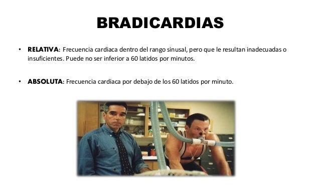 BRADICARDIAS • RELATIVA: Frecuencia cardiaca dentro del rango sinusal, pero que le resultan inadecuadas o insuficientes. P...