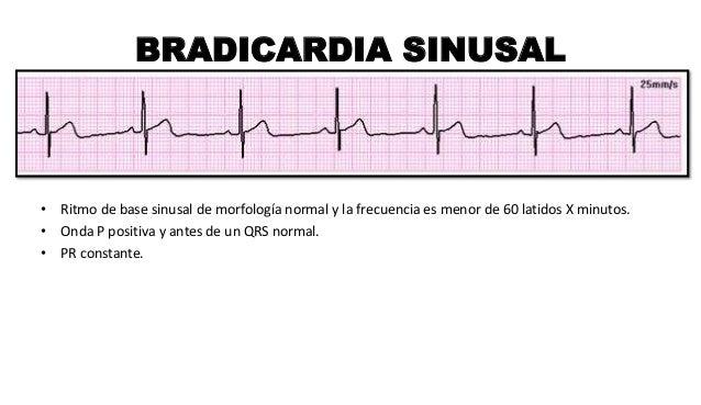 BRADICARDIA SINUSAL • Ritmo de base sinusal de morfología normal y la frecuencia es menor de 60 latidos X minutos. • Onda ...