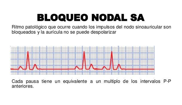 BLOQUEO NODAL SA Ritmo patológico que ocurre cuando los impulsos del nodo sinoauricular son bloqueados y la aurícula no se...