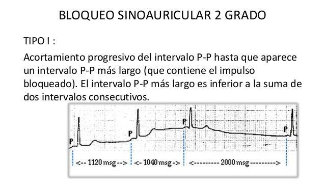 TIPO II: Un intervalo sin ondas P que equivale aprox. A 2, 3 o 4 veces el ciclo P-P normal