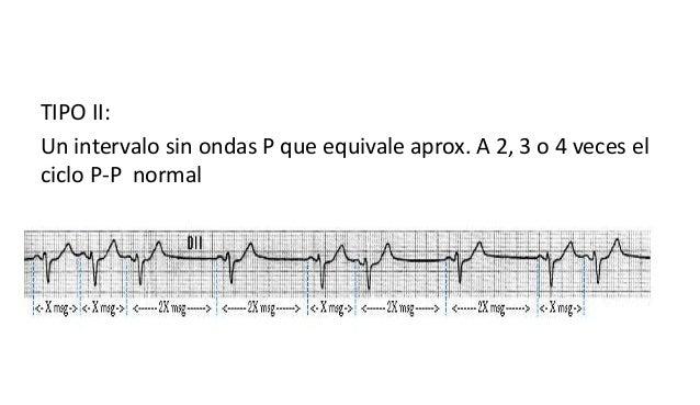BLOQUEO SINOARICULAR 3 GRADO • Se puede registrar como la ausencia de ondas P pero no se puede confirmar sin el registro d...