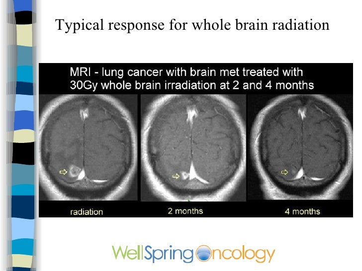 cancer and radiation Radiation therapy may be used to treat breast cancer learn how we use advanced radiation technology to precisely target cancer cells, with fewer side effects.