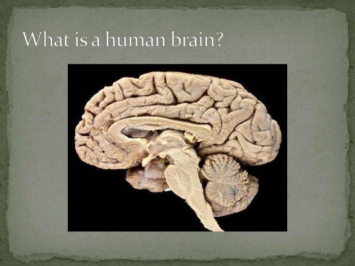 Brain Slide 3