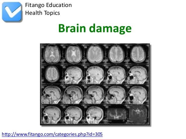http://www.fitango.com/categories.php?id=305Fitango EducationHealth TopicsBrain damage