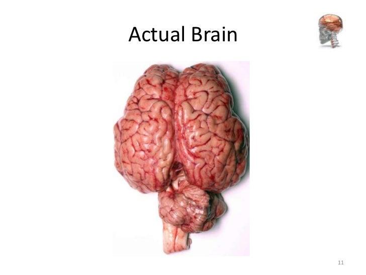 Anatomy of cerebellum