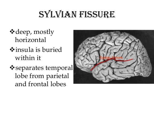 Old Fashioned Fissure Definition Anatomy Motif - Anatomy And ...