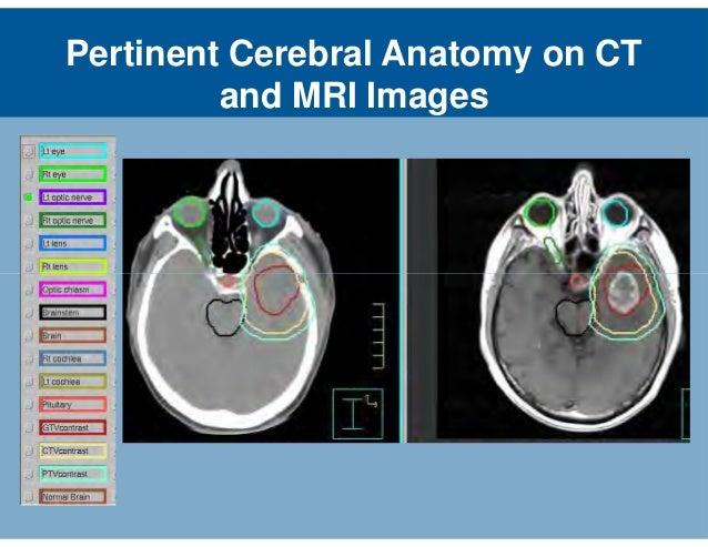 Brain Anatomy On Ct Amp Mri