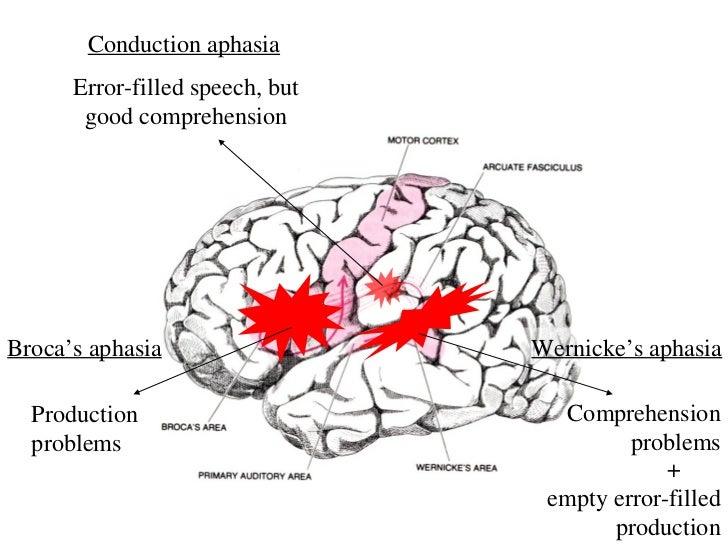 conduction aphasia error filled speech but good comprehensionbroca s ...