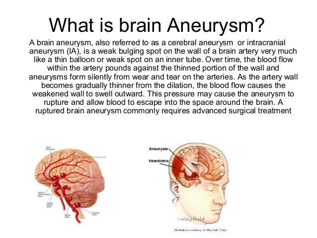 brain aneurysms in general, Human Body