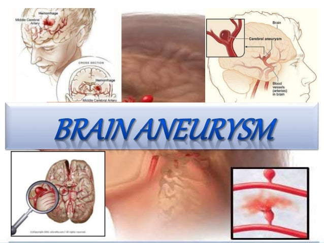 An excessive localized swelling of the wall of an artery is called an aneurysm.