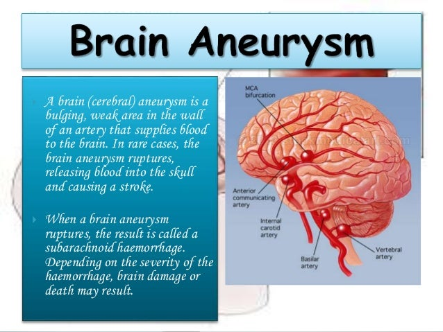 causes and symptoms of brain aneurysm If a brain aneurysm is unruptured, ie, no leak, it may not show any symptoms at all, or they may be small and unnoticeable this symptom is mostly the case if an aneurysm is little if it is large, then there will be specific symptoms such as pain behind and above the eye, dilated pupil, blurred .
