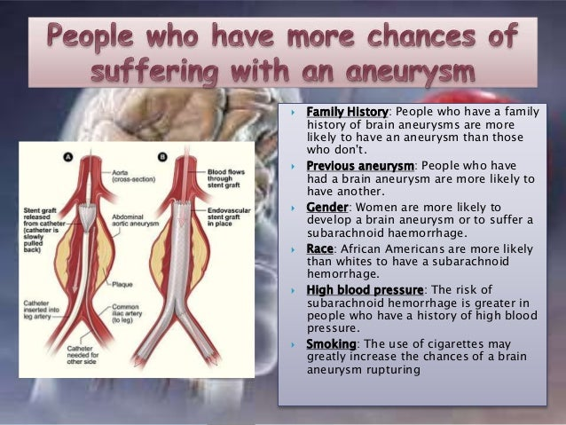 symptoms of aneurysm – citybeauty, Human body