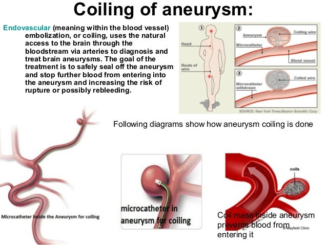 causes and symptoms of brain aneurysm