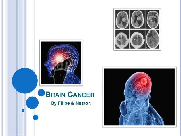 BRAIN CANCER By Filipe & Nestor.