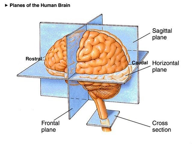 9733506 additionally Dorsal And Ventral Side Of The Body further 11820926 further Unlabeled Body Planes And Sections also Caudal Brain. on anatomical planes of brain