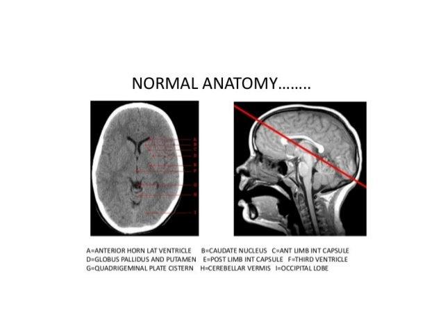 Quiz / Test: Brainstem | Kenhub