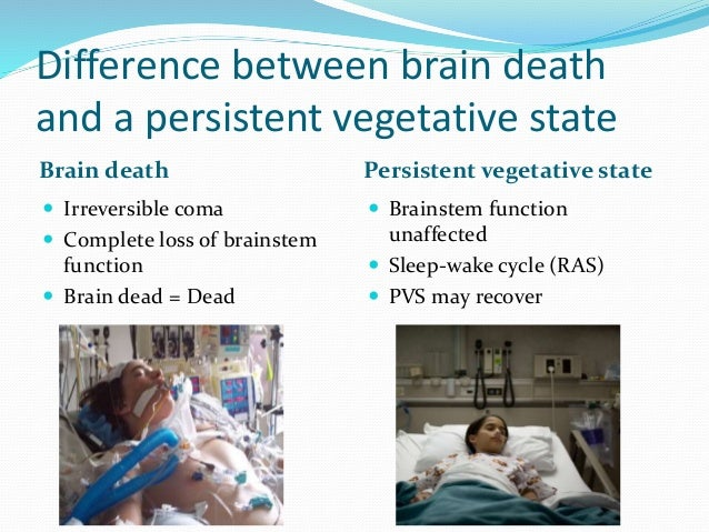 whole brain death standard Whole-brain standard of death, some philosophers and scientists have argued that the whole-brain standard does not go far enough, several leading authors on the.