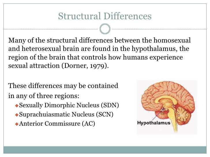 Sexually dimorphic nucleus human brain