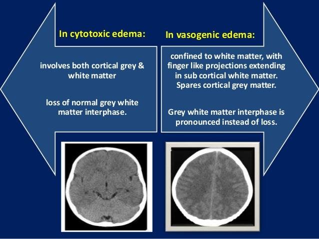 steroids in vasogenic edema