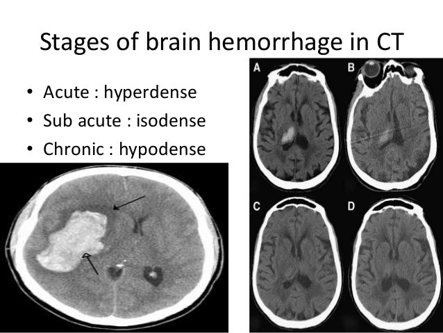 Radiology Of Brain Hemorrhage Vs Infarction on brain hemorrhage stroke