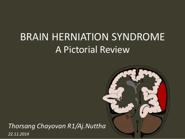 brain herniation imaging