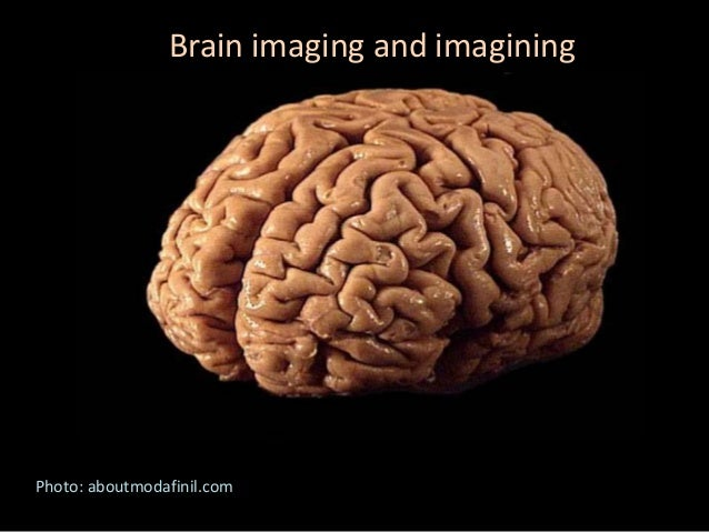 Brain imaging and imagining Photo: aboutmodafinil.com