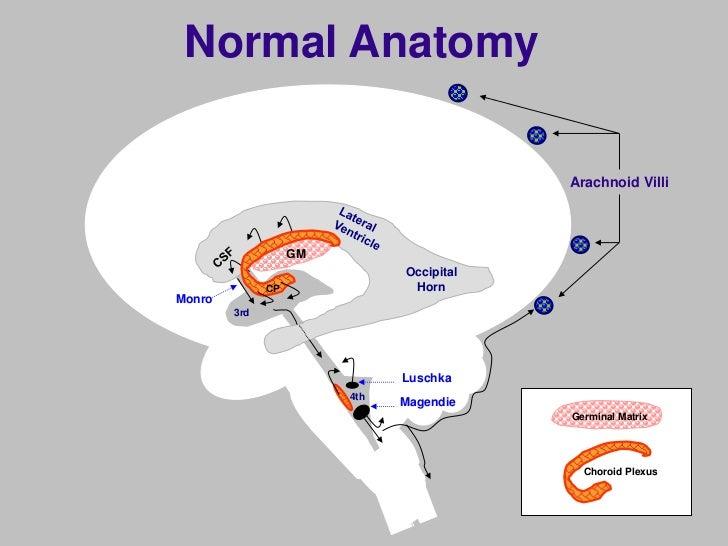 Brain Injury In Pre Term Infants
