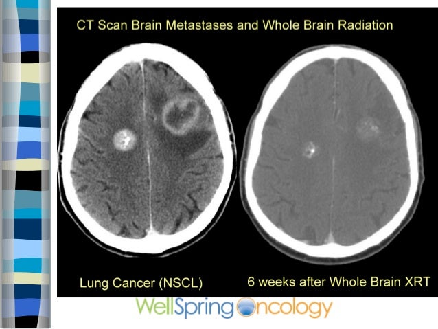 CT scan of metastatic brain tumor from lung cancer before and after whole brain radiation