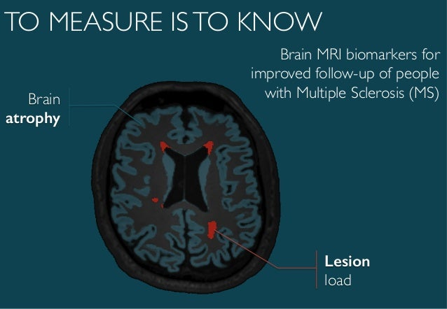 brain mri biomarkers for improved follow up of people with multiple s