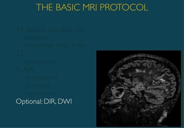 Brain MRI biomarkers for improved follow up of people with